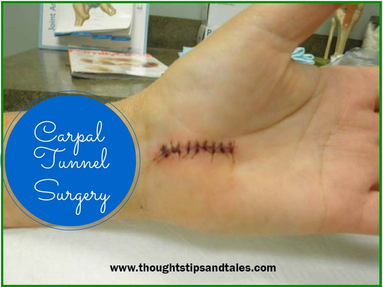 Stitches from carpal tunnel surgery